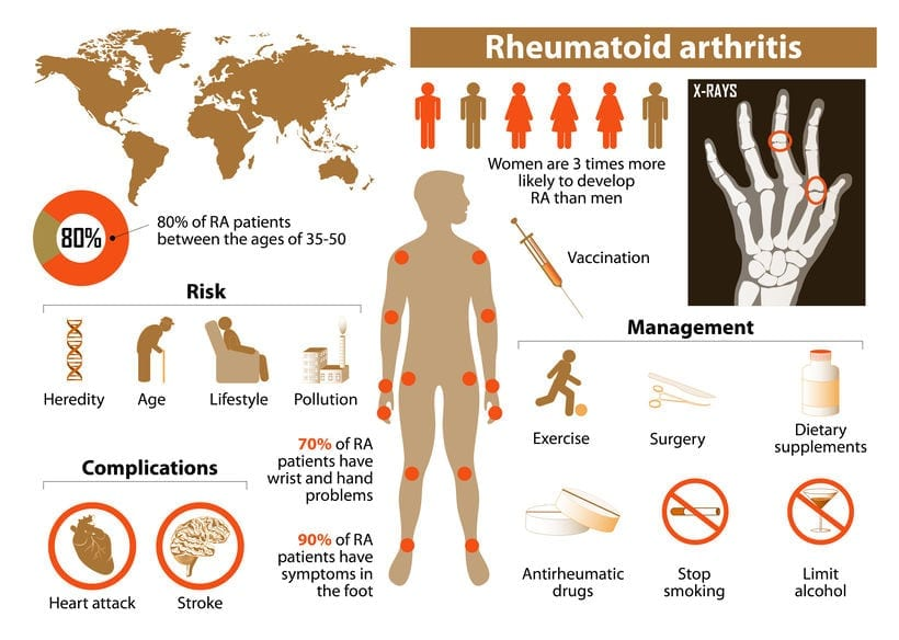 Rheumatoid arthritis management tips